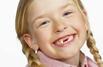 фото дети без зубов