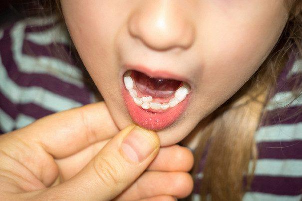 У кого растут зубы в два ряда