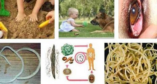 Как лечить глисты у ребенка в домашних