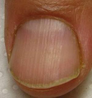 Черные полоски на ногтях рук