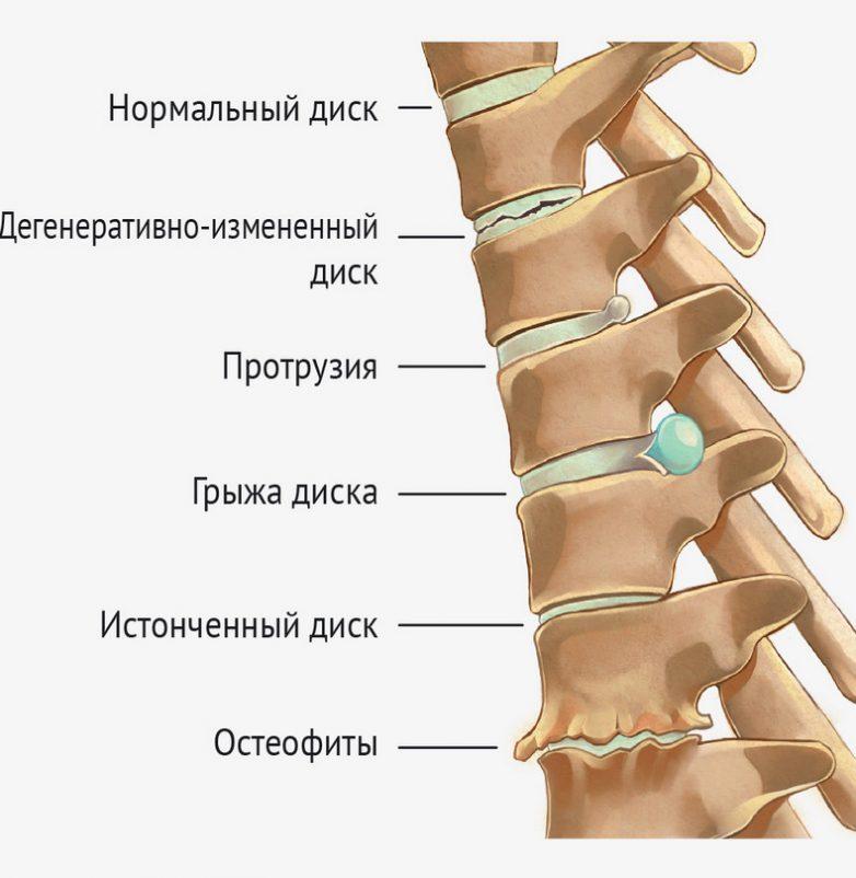 порекомендовать зайти боль в спине грыжа диска этом что-то