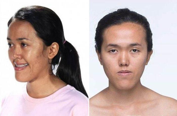 Фантастические результаты современной пластической хирургии