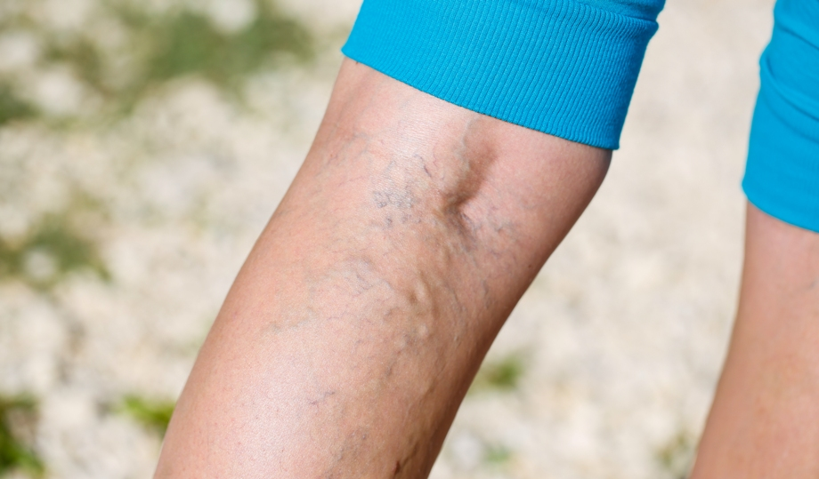 От чего мерзнут ноги лечение народными средствами