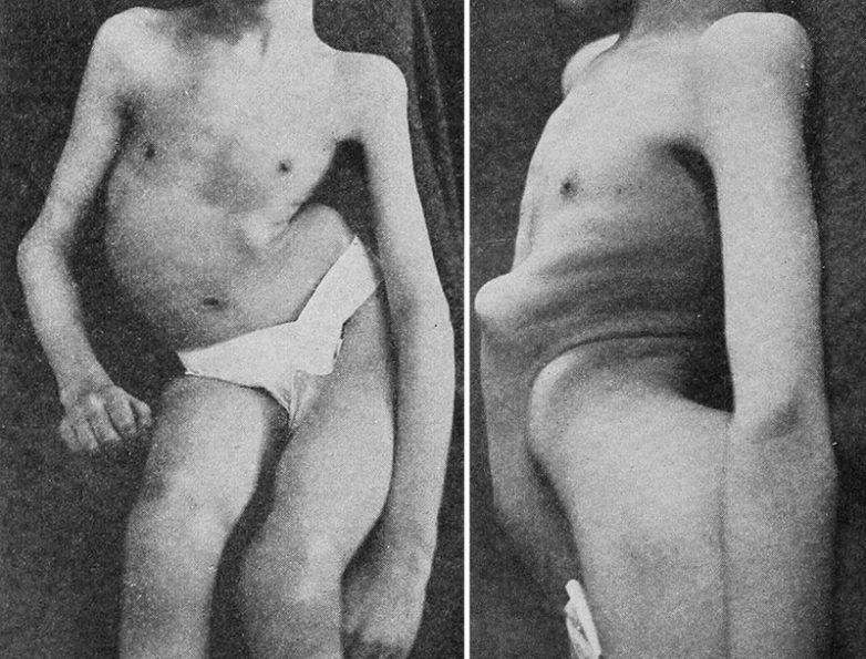 Как Советский Союз помог Японии уничтожить смертельный вирус