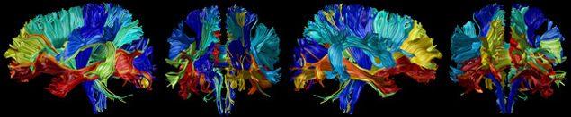 Судьба мозга после 40 лет жизни