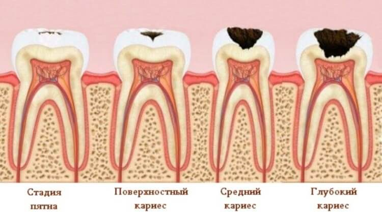 Ну наконец-то! Учёные придумали конфеты, которые лечат зубы, а не разрушают их