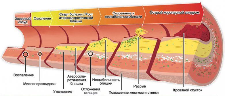Факты о холестерине, о которых мало кто знает