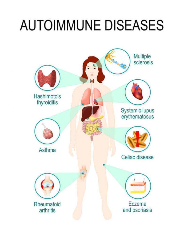 Основная причина аутоиммунных заболеваний