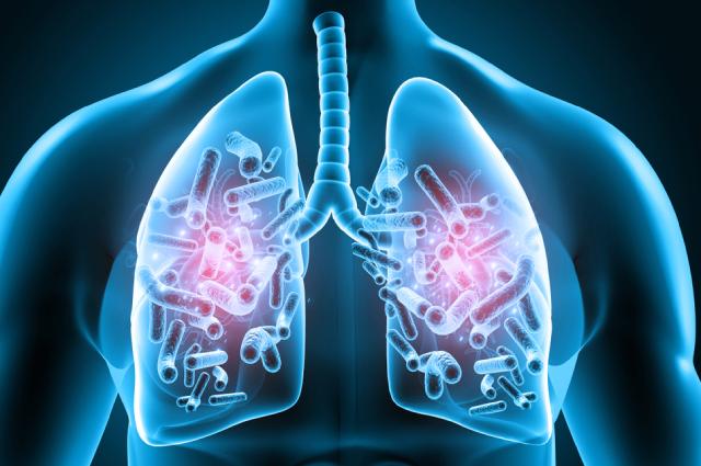 Чем опасен микобактериоз и как его лечить
