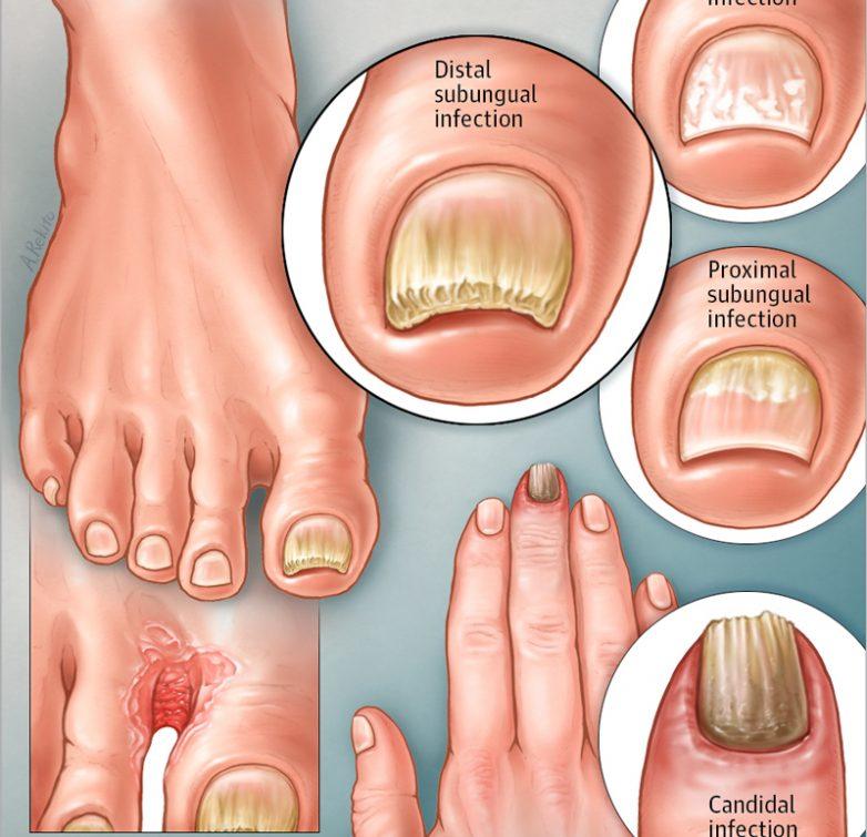 Что полезно знать про грибок ногтей