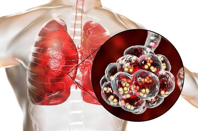 Как защититься от пневмококковой инфекции