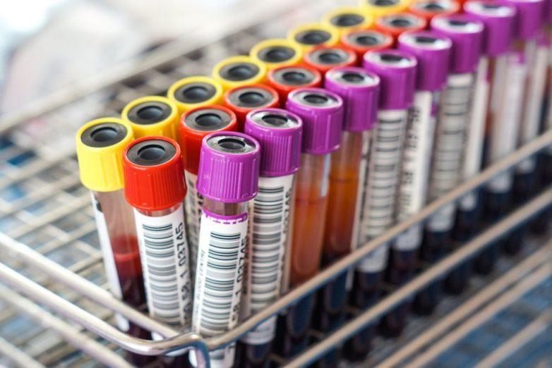 Кто склонен к тромбозу при коронавирусе
