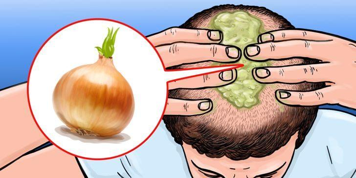 Советы, которые помогут отрастить волосы естественным путём и забыть о залысинах